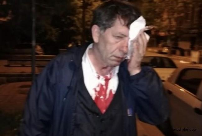 Kayserili Gazeteciye Sopalı Saldırı!